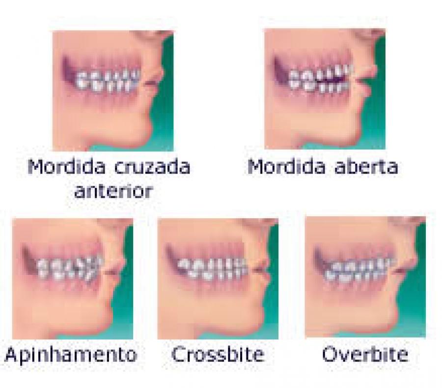 fb2aebe6d É hora de usar aparelho? O que é a ortodontia?
